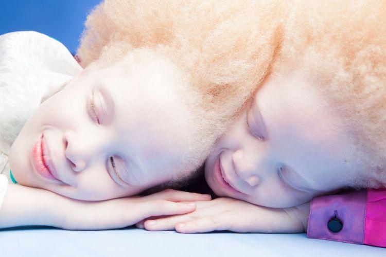 albino-twins-models-sisters