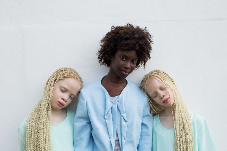 albino-twins-models-sister